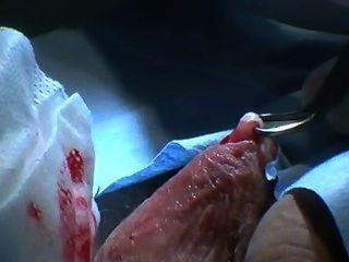 Vasectomía australiana en la preparación masculina sin cortar, afeitado, cinta de entrenamiento