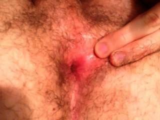 Digitación de agujero peludo